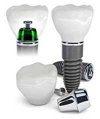 Dental Implants in Downtown Bakersfield